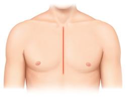 通常の胸骨正中切開(25~30 cm切開)