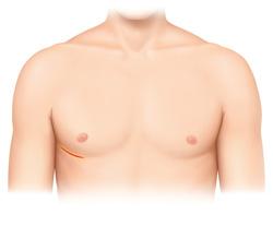 右小肋間開胸(8 cm切開)