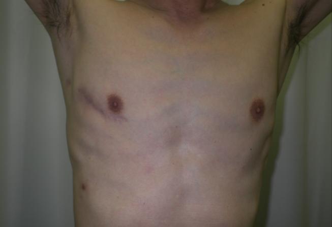 b)右小肋間開胸創部写真(8 cm切開)