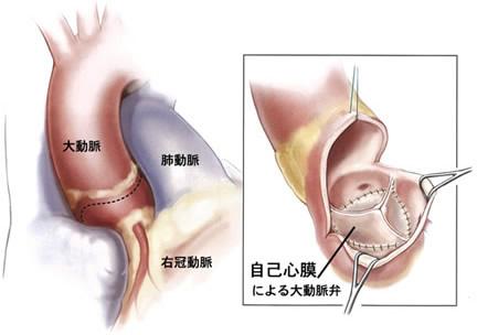 a)自己心膜を使用した大動脈弁再建術