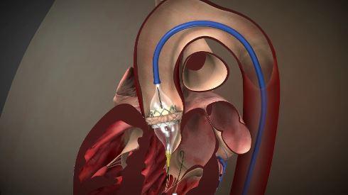経カテーテル的大動脈弁置換術