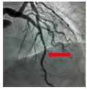 冠動脈狭窄治療後